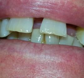 Before Dentures Oct 2013 Dr. Hanson